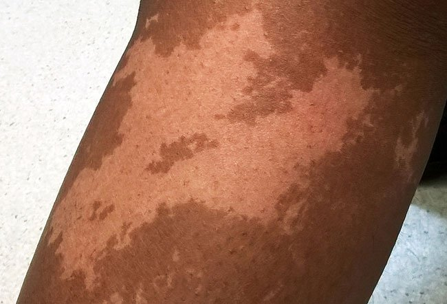 Picture of Nevus Depigmentosus (Achromicus)