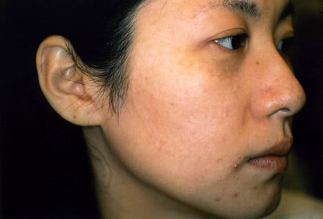 Picture of Nevus of Ota Treatment.