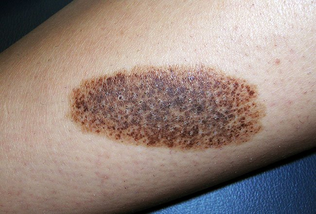 Picture of Nevus Spilus