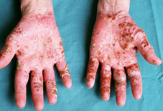 Picture of Palmar Pustulosis
