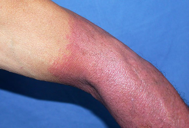 Picture of Phototoxic Drug-induced Photosensitivity