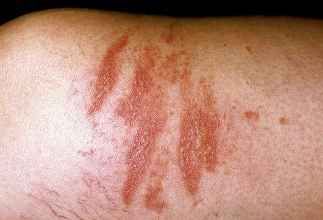 Picture of Phytophotodermatitis Hyperpigmentation