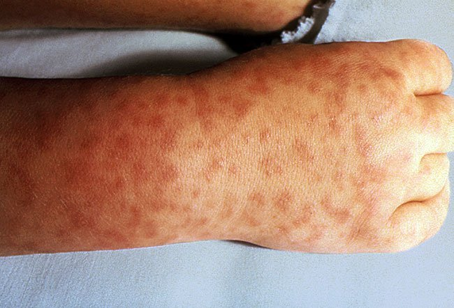 Picture of Rocky Mountain Spotted Fever (Legs)