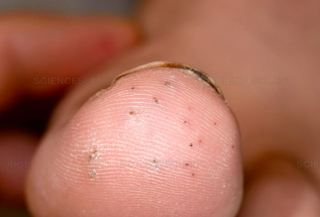 Pictures Of Skin Diseases And Problems Sea Urchin Dermatitis