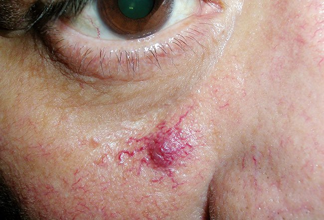 Picture of Spider Angioma