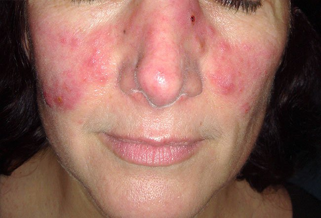 Picture of Systemic Lupus Erythematosus 2
