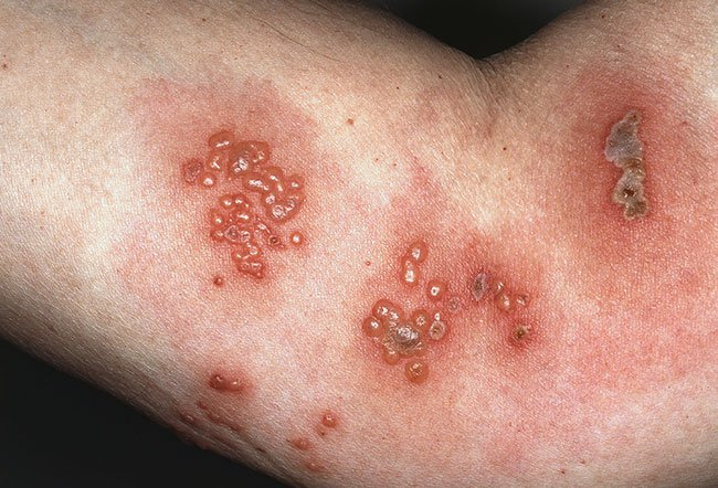 Picture of Varicella-Zoster Virus Infection: Close-Up  