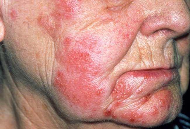 Skin Infection On Face