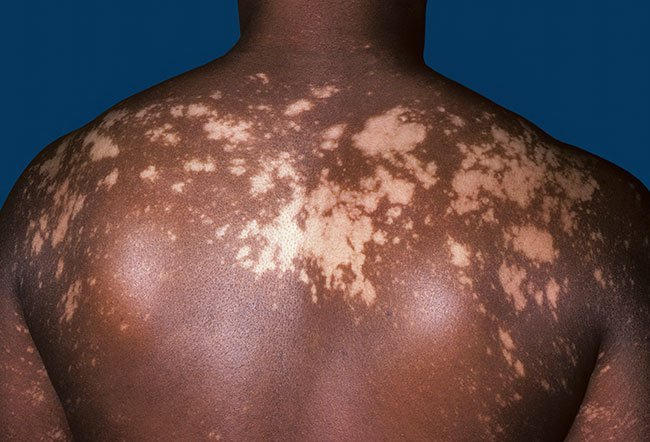 Picture of Vitiligo on Back  