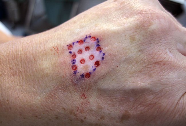 Picture of Vitiligo Punch Grafts.