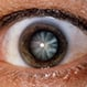 Cataracts Quiz