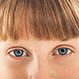 Eye Conditions Quiz