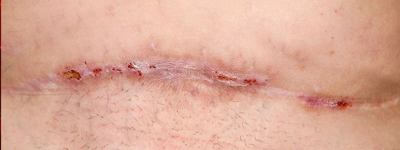 A wound healing from infection.