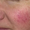 Read about the treatment of rosacea.