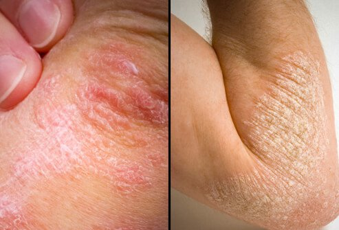 Pictures of skin diseases and problems psoriasis