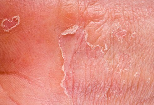 Genital Rash - Symptoms, Causes, Treatments - Healthgrades