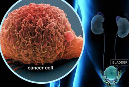 bladder cancer symptoms, signs, treatment, prognosis, staging, Human Body