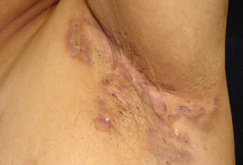 Picture of Hidradenitis suppurativa