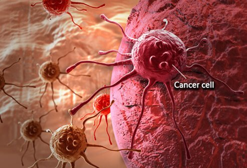 cancer-101-s1-what-is-cancer-cell.jpg (493×335)