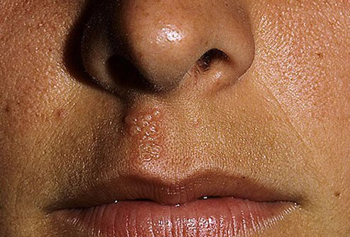 Picture of Cold Sore Between Nose and Mouth