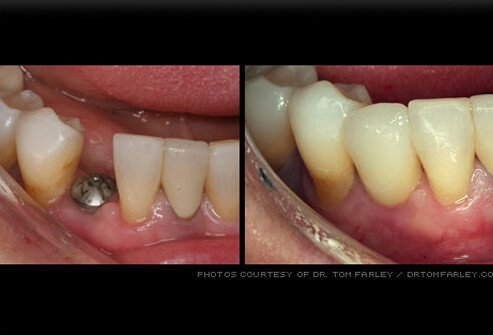 Picture of Dental Implants