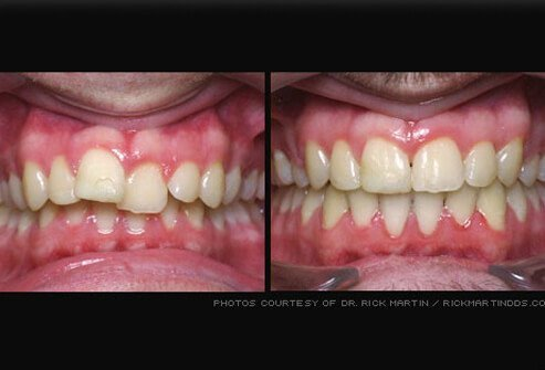 Picture of Orthodontics (Braces)