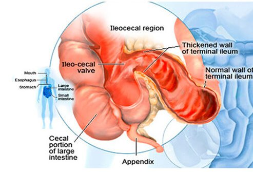 how to keep your large intestine healthy