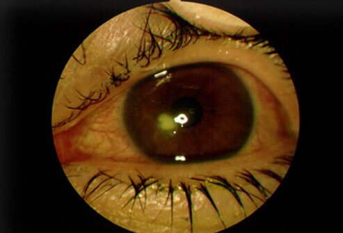 Picture of Corneal Ulcer