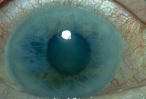 Picture of Glaucoma