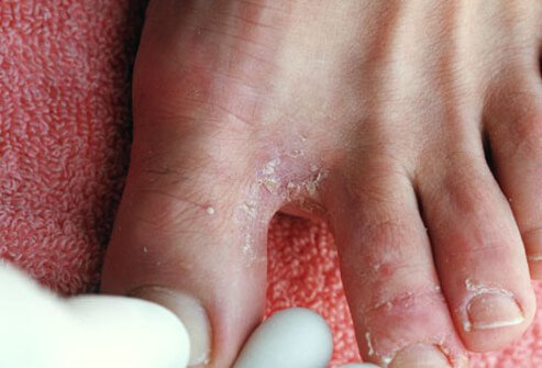Picture of Athlete's Foot (1 of 2)