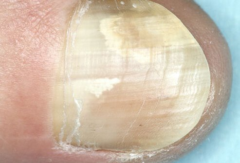 Picture of Onychomycosis (Fungal Nail Infection)