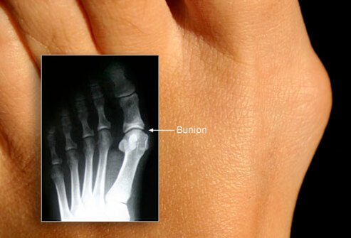 Picture of Bunion