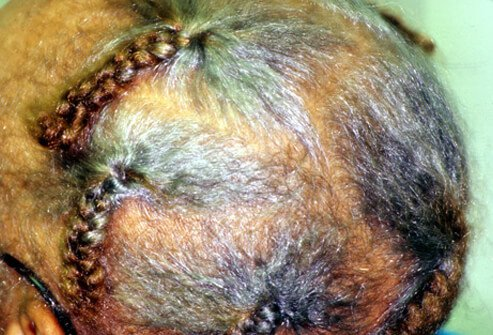Picture of Traction Alopecia