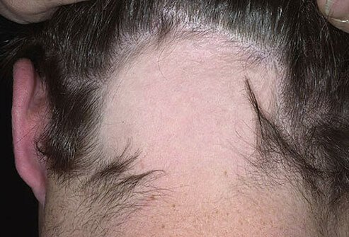 Picture of Alopecia Areata