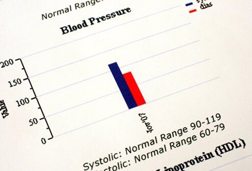 Picture of Low Blood Pressure (Hypotension)