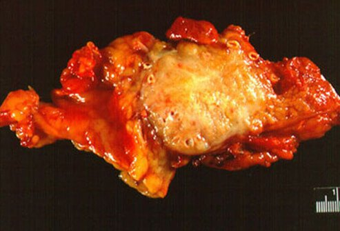 Picture of Pancreatic Cancer Tumor
