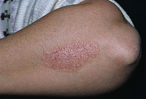 Psoriasis is a treatable condition which affects 2  of the population 1