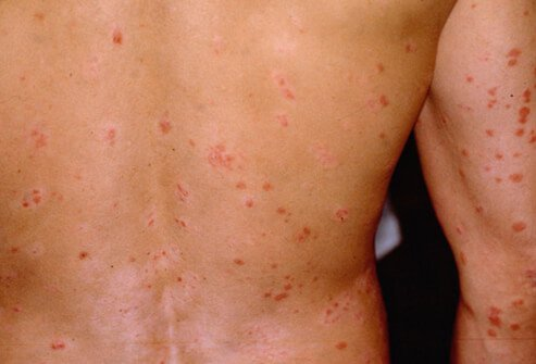 Picture of Guttate Psoriasis