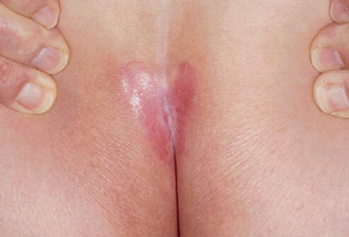 Picture of Inverse Psoriasis