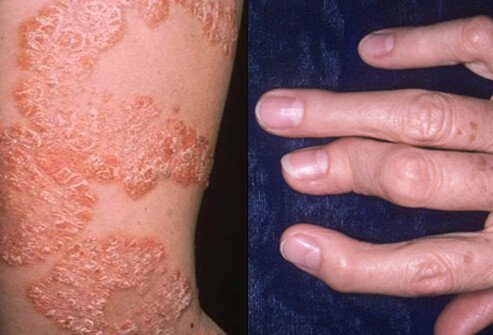 What is Psoriasis Psoriasis is defined as an autoimmune disease affecting both skin & joints 1