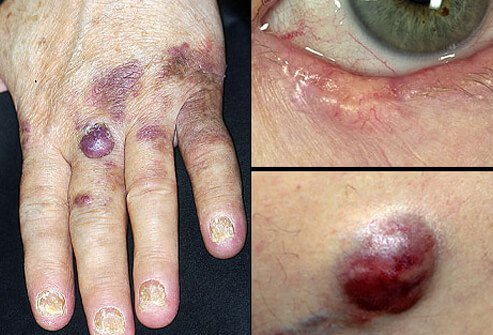 Picture of Less Common Skin Cancers