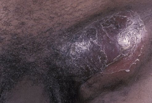 Picture of LGV (Lymphogranuloma Venereum)