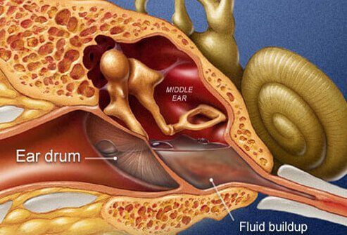 Picture of Meniere disease inner ear disorder of the flow of fluids.