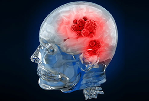 Brain Cancer Symptoms, Diagnosis, and Treatment Slideshow