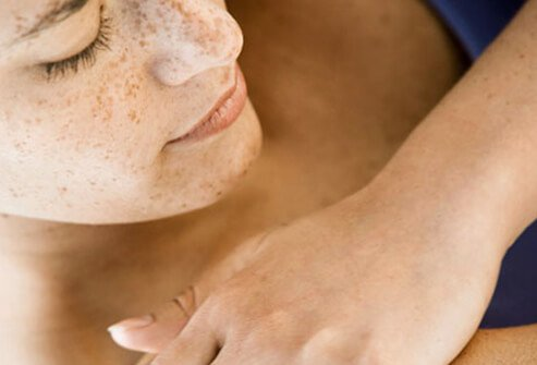 Rash: Heat, Lupus, Strep, Shingles & Other Causes