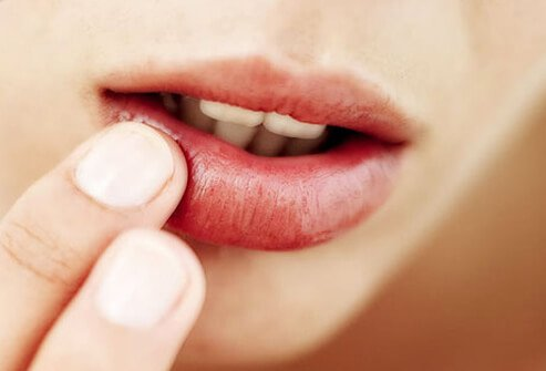 Oral Herpes Symptoms and Signs: Causes