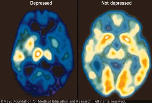 Learn to Spot Depression Symptoms, Warning Signs, Medication Slideshow