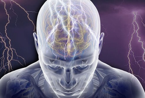 Epilepsy Symptoms, Causes and Treatment Slideshow