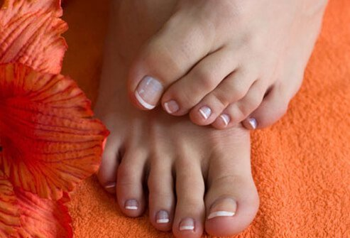 Broken Toe Treatment, Recovery Time, Symptoms & Pictures
