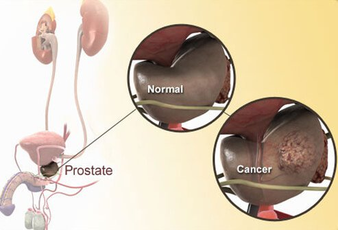 Prostate Cancer Symptoms, PCA Test, Treatments Slideshow